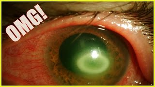 ⚠️Paramedic forced to have his EYE removed after his contact lens was infected by a parasite