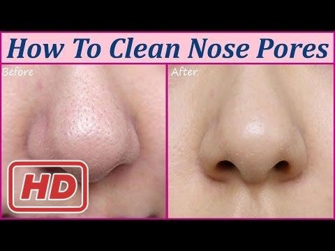 [Health Tips]How To Clean Nose Pores Home Remedies