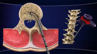 INTRACEPT Intraosseous Nerve Ablation System