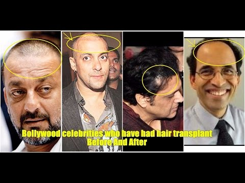 Top 5 Celebrities who have had Hair transplant