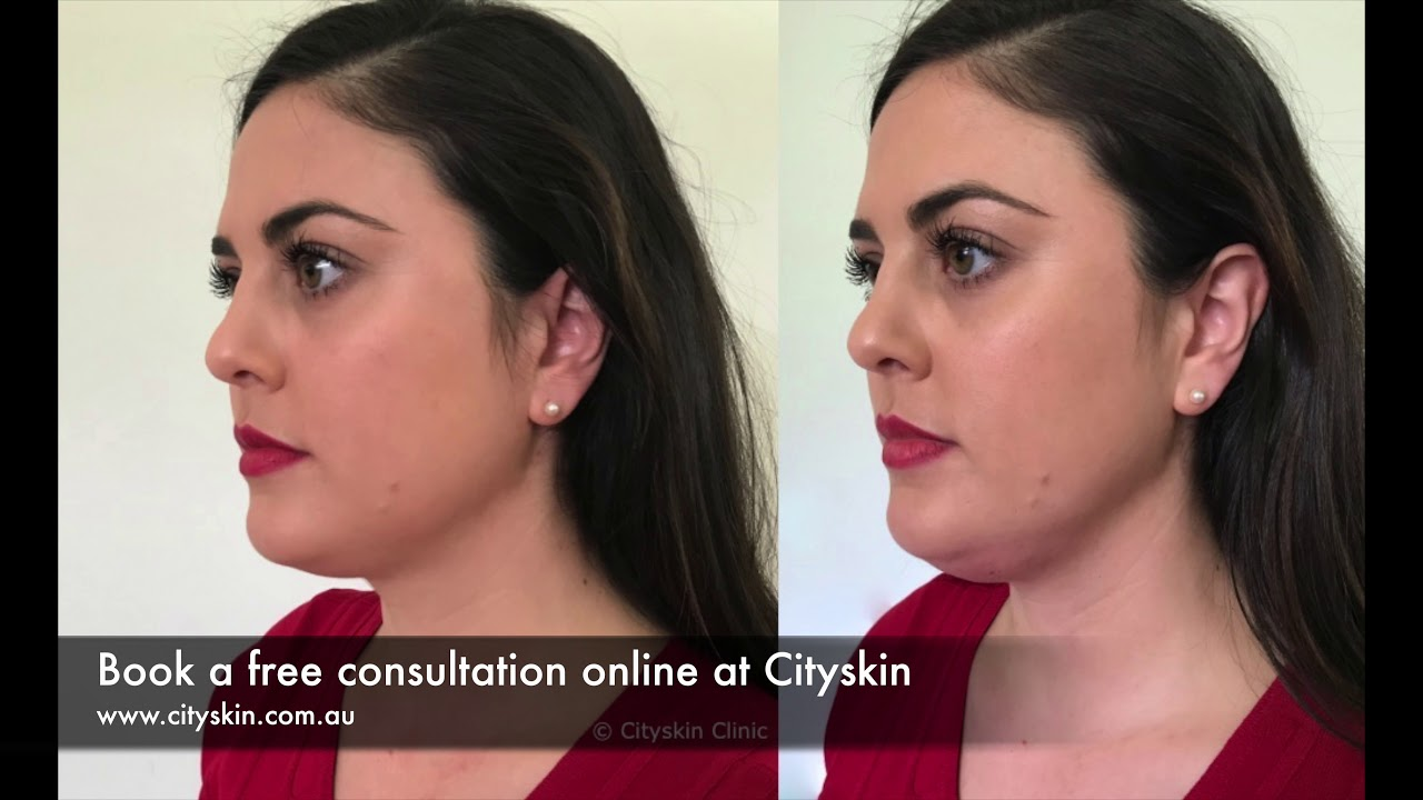 How much does it swell after double chin injections?