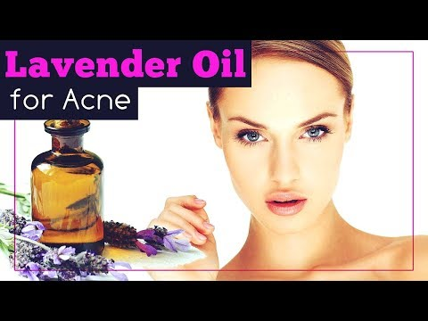 lavender-oil-for-acne:-how-to-use-it-and-should-you-do-so?