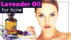 hqdefault - Uses For Lavender Oil Acne
