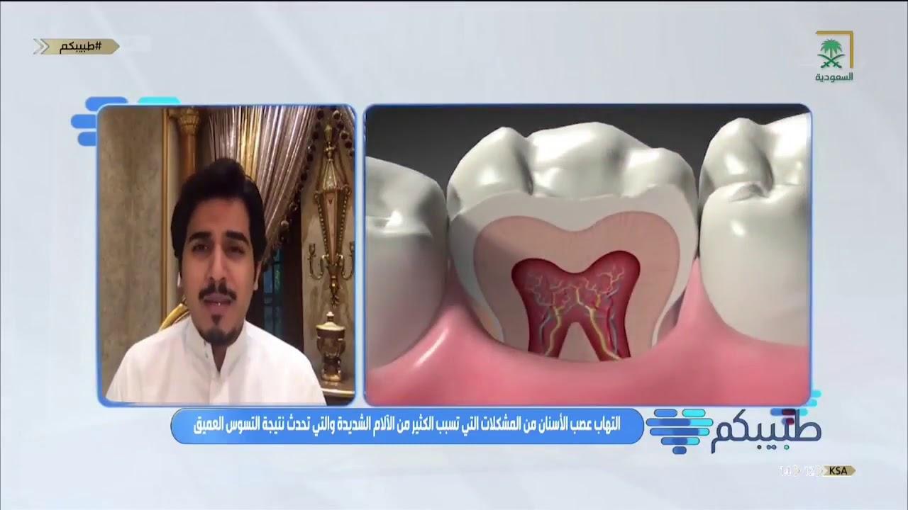 معالجة عصب الأسنان Same Day