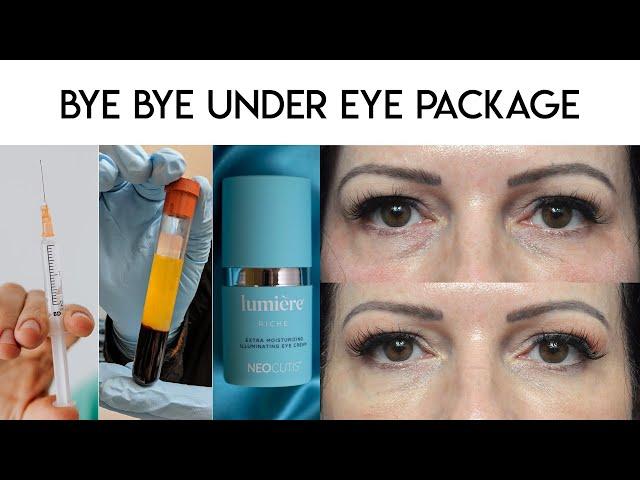 Bye Bye Under Eye
