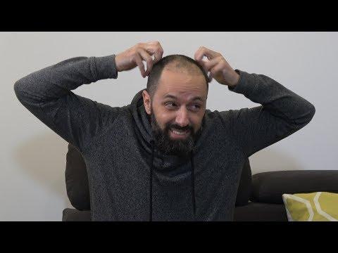 CINCO PREGUNTAS SIN CENSURA (Videopatas) El trasplante de pelo