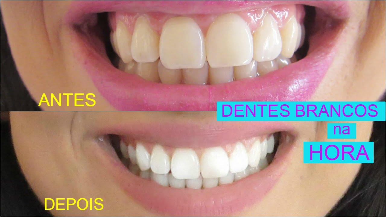 Dentes Mais Brancos Em Segundos Youtube