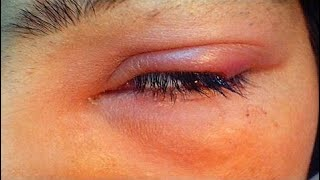 How To Get Rid Of A Eye Stye with castor oil - Causes, Symptoms & treatment