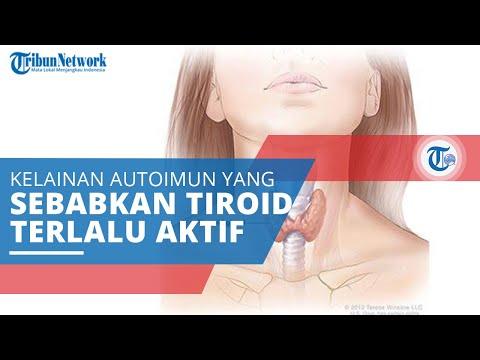 Hipertiroidisme