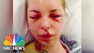 Christy Mack Assaulted By MMA's 'War Machine' | NBC News