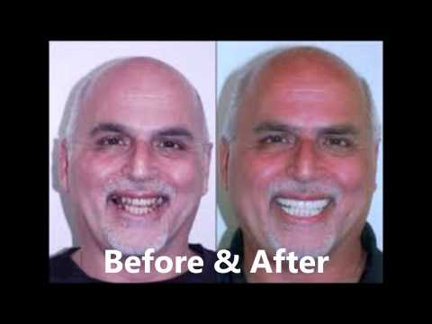 Affordable Dental Implants Indianapolis - Indianapolis Dentists Reviews!
