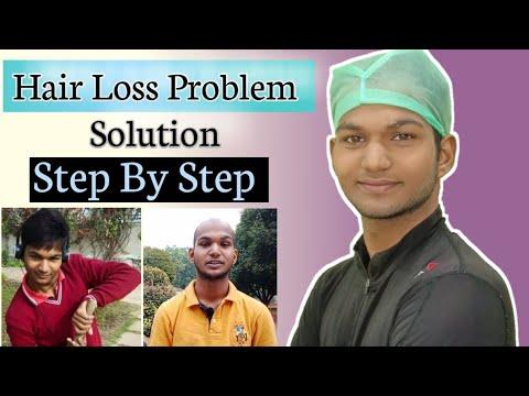 Hair Loss Treatment।Step By Step।Sonu Kumar Mishra।