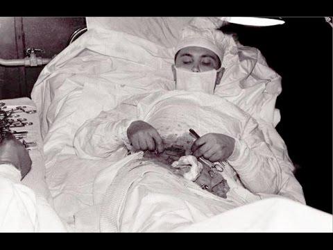 ليونيد روجوزوف الطبيب الذي أجرى عملية جراحية لنفسه