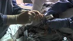 Lung Cancer Procedure