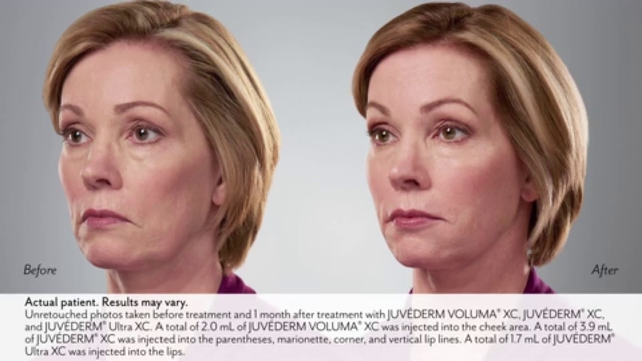 Juvederm Filler Treatments | Body Beautiful Laser Medi-spa