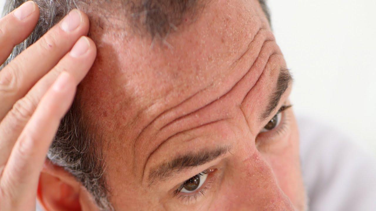 You propecia facial hair loss