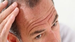 Pros & Cons of Propecia (Finasteride) | Thinning Hair