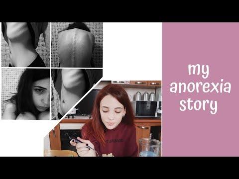 ANORESSIA: LA MIA STORIA    MY ANOREXIA STORY