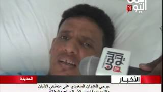 جرحى العدوان السعودي على مصنعي الالبان والزيوت في الحديدة يكابدون آلام الجراح والبطالة