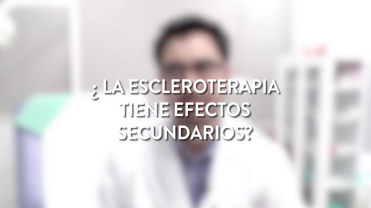 los efectos secundarios de la escleroterapia