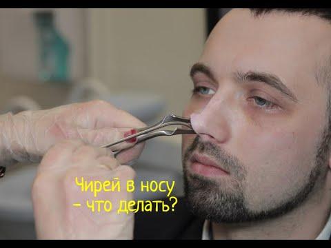 Фурункул преддверия носа, внутри носа фурункул, фурункул