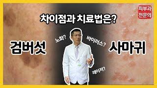 [피부과 전문의]얼굴 오돌토돌 잡티 검버섯vs사마귀 차…
