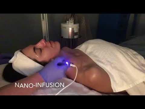 Nano-Infusion Facial • Retroskin • Lakeland, FL