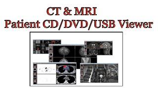 CT & MRI patient CD/DVD/USB viewer screenshot 1