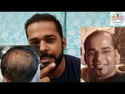 Hair Transplant 6 Month Result - Best Hair Transplant Result in 10Rs Per Graft Clinic