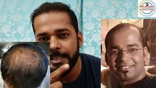 Hair Transplant 6 Month Result - Best Hair Transplant Result in 10Rs Per Graft - 100% Truly Review