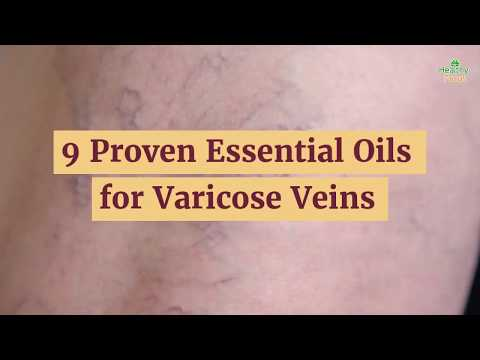 9-proven-essential-oils-for-varicose-veins