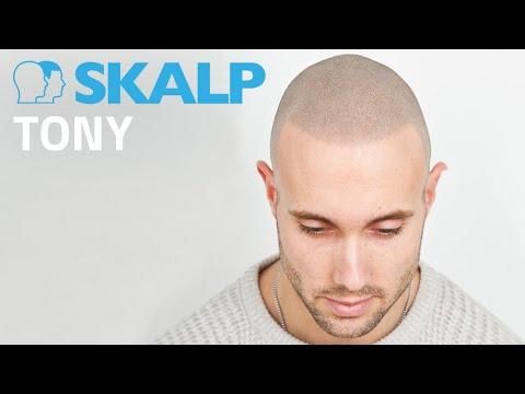 Bestfit TV featuring Skalp® Scalp Micropigmentation in Manchester