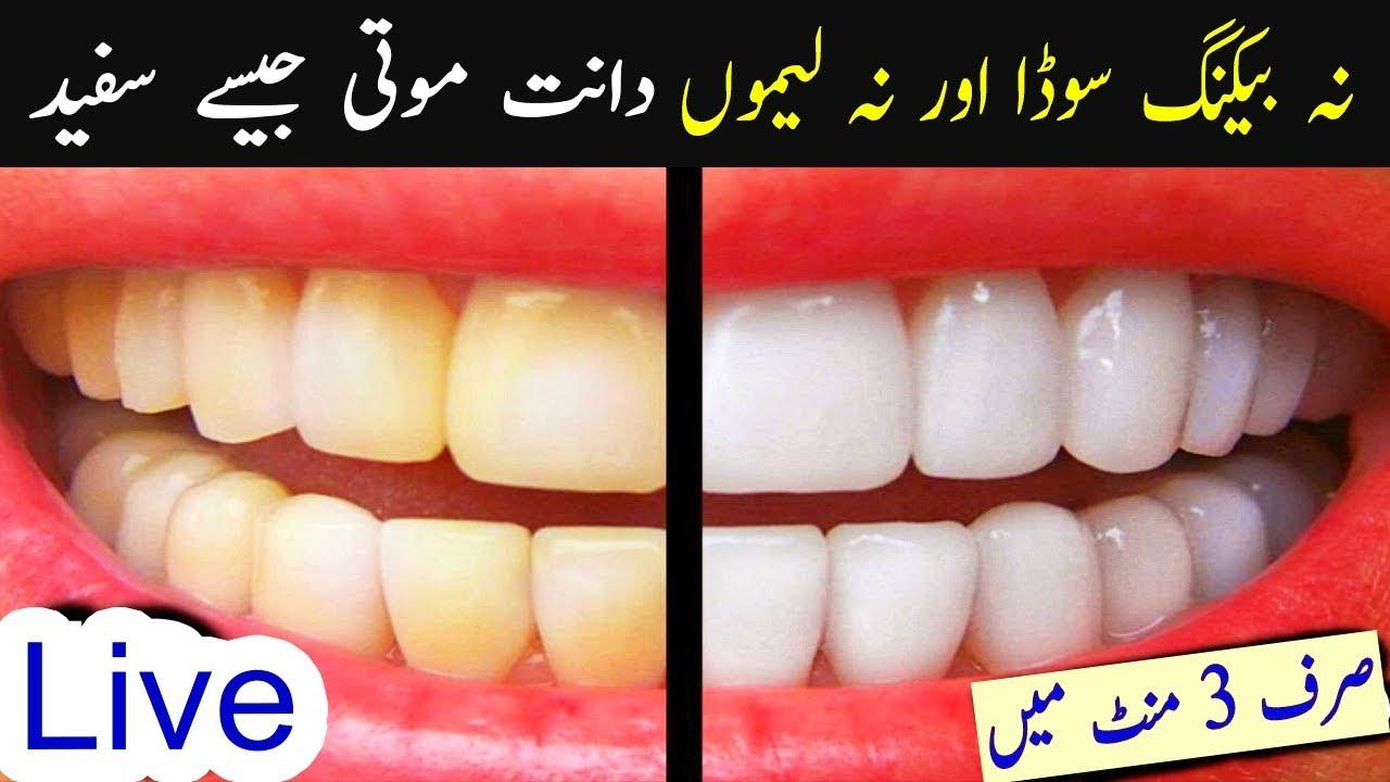 Teeth Whitening In 3 Minutes No Baking Soda No Lemon Aisha