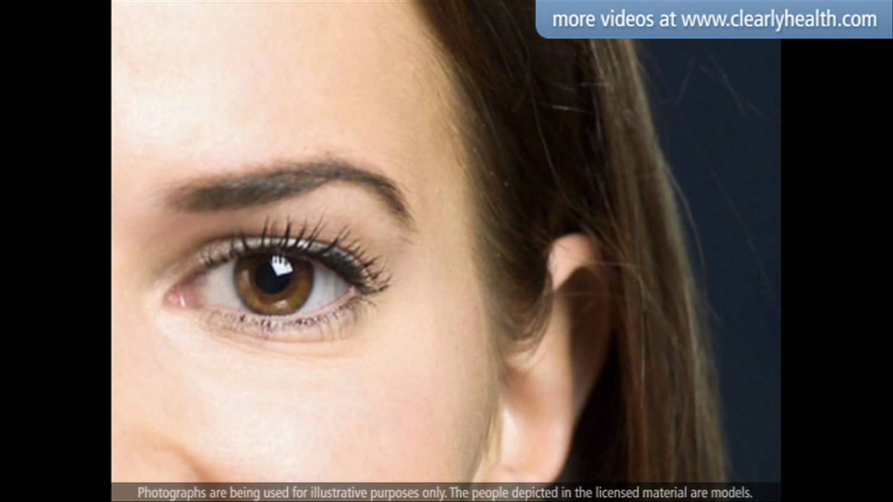 9216cf7dbbb Diabetes  Blindness and blurry vision (Retinopathy) - YouTube