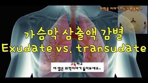 흉수(Pleural fluid): Transudate(여출액)과 Exudate(삼출액) 감별