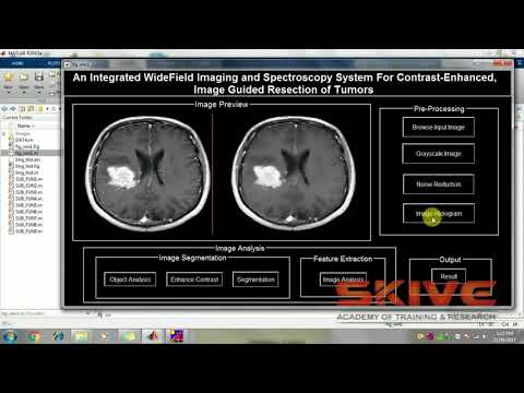 Spectroscopy system for contrast enhanced, image guided resection of Tumors