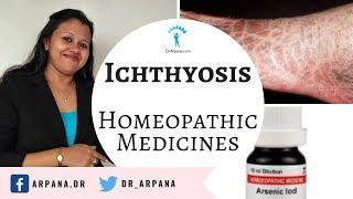 फ़िशस्किन रूखी सुखी फटी त्वचा की  बेस्ट होम्योपैथिक दवाई || ICHTHYOSIS Best Homeopathic Medicine