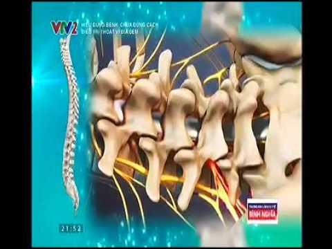 Chương trình hiểu đúng bệnh chữa đúng cách - Thoát vị đĩa đệm - VTV2