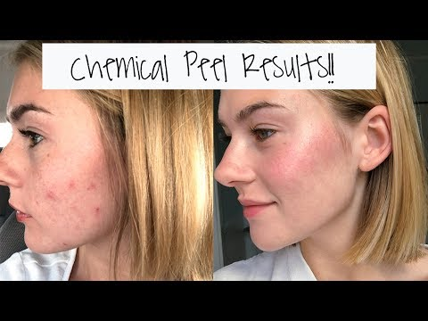 I Got A Chemical Peel!!! The Results: