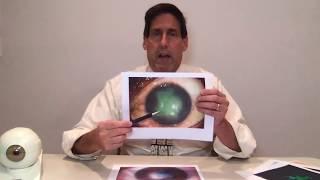 Dr. Alan Mendelsohn  - Herpes Simplex Virus