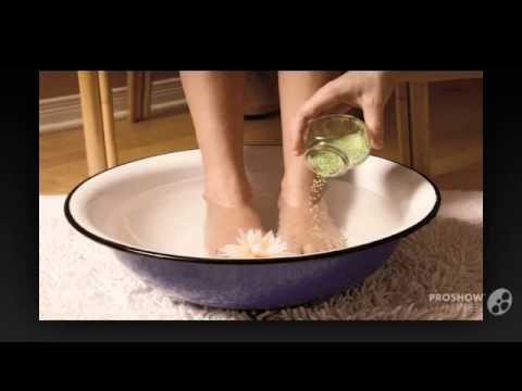 Средства которые помогут избавиться от косточки на ступне