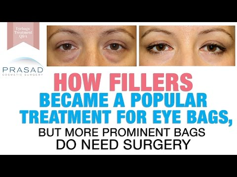 Treating Puffy Eye Bags - How Fillers Became Popular, and Wh