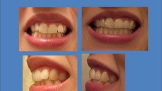 INVISALIGN Update: Tray 21 (last tray!) & Refinements