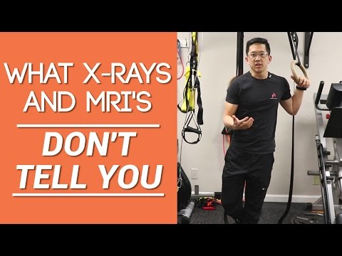 X-ray for shoulder pain? The truth about what x-rays and MRI's DON'T tell you