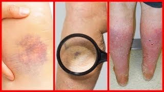 Na sangue parecer coágulo pode um músculo um perna puxado de