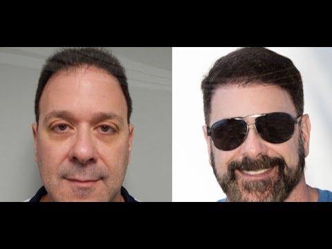 Hair Transplant In Miami Florida Hair Restoration Near Me Youtube