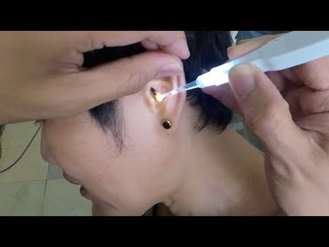 Foreign Body Removal Lodged in Woman's Ear for Years Causing Hearing Loss