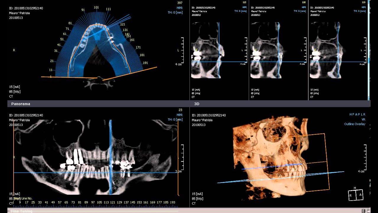 Cone Beam Tc Cranio 3d Avi Youtube