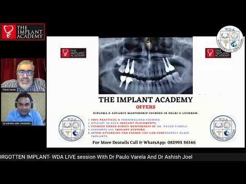 The Forgotten Implant
