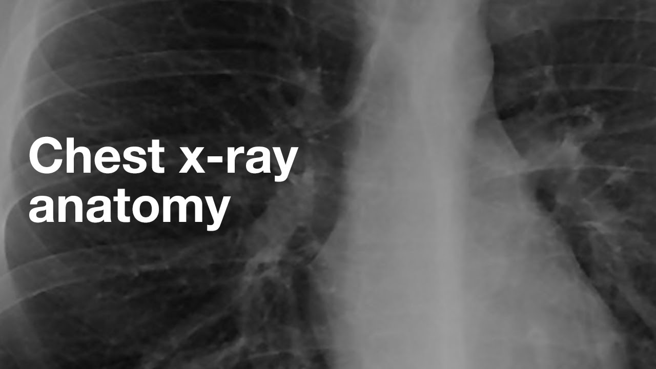Basic Chest X Ray Anatomy Youtube